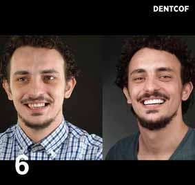 https://www.periodonciavigo.com/nueva-web/wp-content/uploads/2015/11/FOTOS-LIBRO-CLINICA.006-283x268.jpg