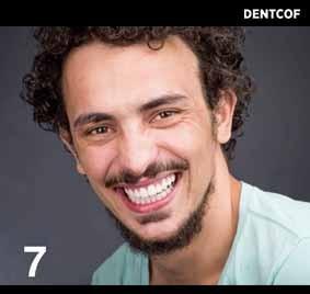 https://www.periodonciavigo.com/nueva-web/wp-content/uploads/2015/11/FOTOS-LIBRO-CLINICA.007-283x268.jpg