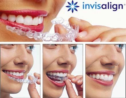 https://www.periodonciavigo.com/nueva-web/wp-content/uploads/2015/11/INVISALIGN-CLINICA-XIANA-POUSA-2-440x342.jpg