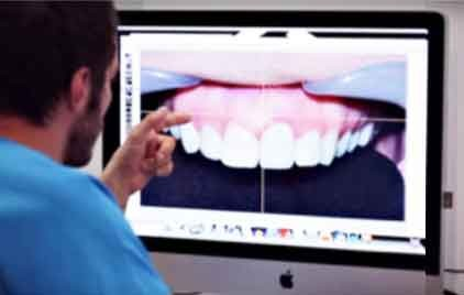 https://www.periodonciavigo.com/nueva-web/wp-content/uploads/2015/11/diseno-digital-sonrisa-clinica-dental-xiana-pousa-422x268.jpg