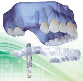 https://www.periodonciavigo.com/nueva-web/wp-content/uploads/2015/11/implantes-clinica-dental-xiana-pousa-10-283x276.jpg