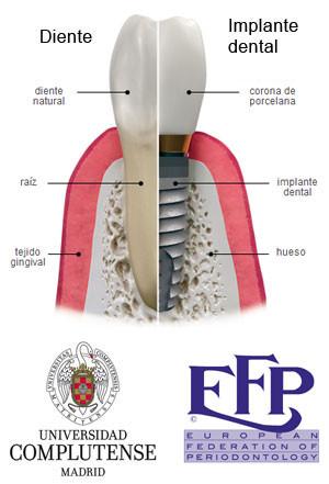 https://www.periodonciavigo.com/nueva-web/wp-content/uploads/2015/11/implantes-clinica-dental-xiana-pousa-8-300x441.jpg