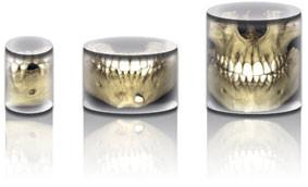 https://www.periodonciavigo.com/nueva-web/wp-content/uploads/2015/11/implantes-clinica-dental-xiana-pousa-bn11-283x172.jpg