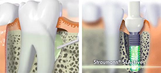 https://www.periodonciavigo.com/nueva-web/wp-content/uploads/2015/11/implantes-clinica-dental-xiana-pousa-bn6-550x249.jpg