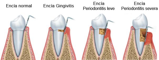 https://www.periodonciavigo.com/nueva-web/wp-content/uploads/2015/11/periodoncia-encias-clinica-dental-xiana-pousa-605x230.png