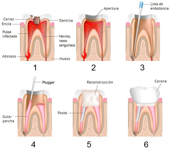 https://www.periodonciavigo.com/nueva-web/wp-content/uploads/2015/12/endodoncia-clinica-xiana-pousa-2-577x511.jpg